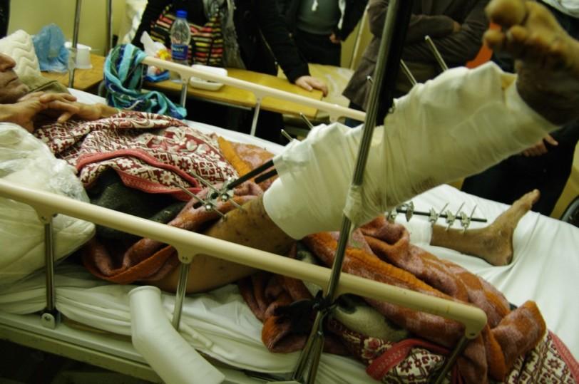 La jambe droite est la plus touchée - Photo prise par Layli